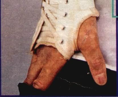 vitiligo4